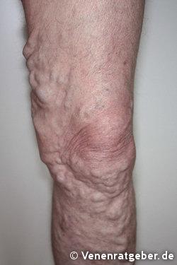 complex asiatic din varicoză cum de a bovine picioarele varicoză